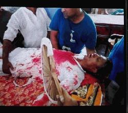 নাগরপুরে  আ.লীগ নেতাসহ ৫জনকে কুপিয়ে জখম