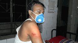 মাস্ক নেই, পুলিশের লাঠিপেটায় আহত সাবেক ছাত্রলীগ নেতা