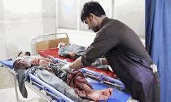 আফগানিস্তানে একটি কারাগারে আইএসের হামলা, নিহত ২৪